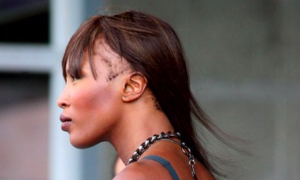 Supermodel Naomi Campbell - Traction Alopecia